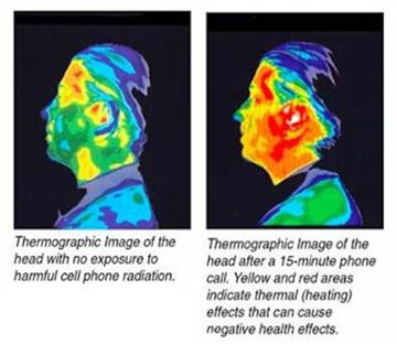 Microwave radiation effect after phone call
