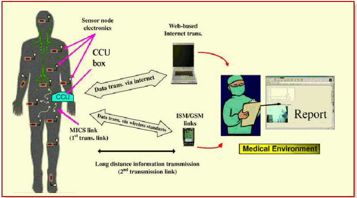 Medical Applications Based on Wireless Sensor Networks