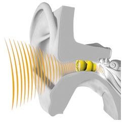Nano Plug Hearing Aid