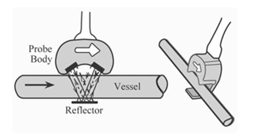 Ultrasonic-Flow-Meter-Construction